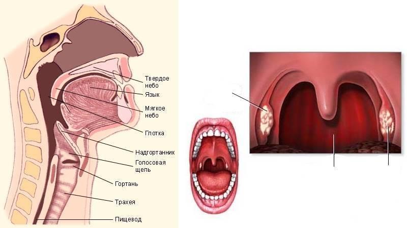 Почему у взрослого постоянно болит горло и что делать?
