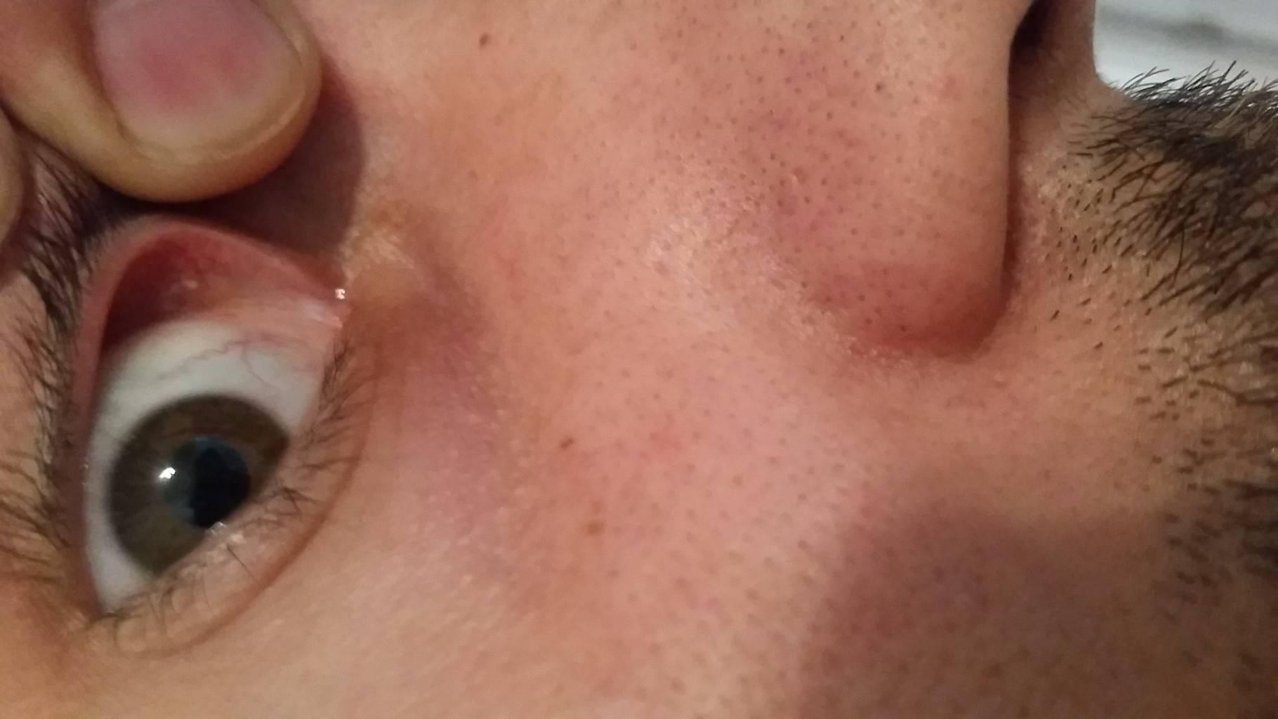 Нарыв в носу лечение в домашних условиях