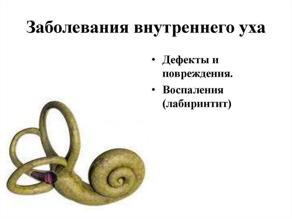 болезни внутреннего уха