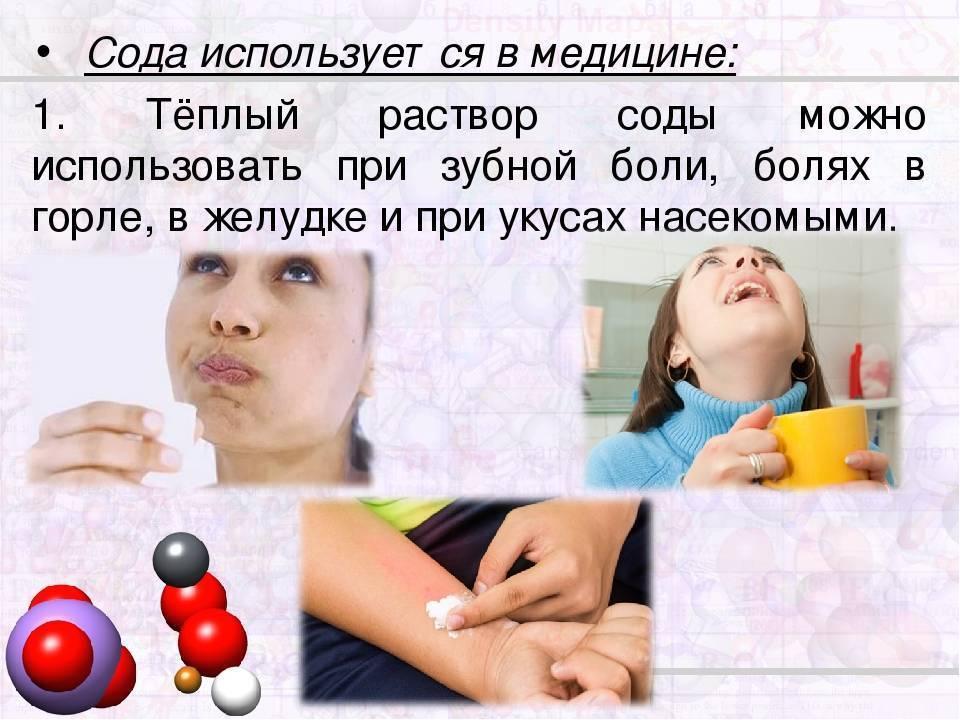 Можно ли полоскать горло при простуде содой
