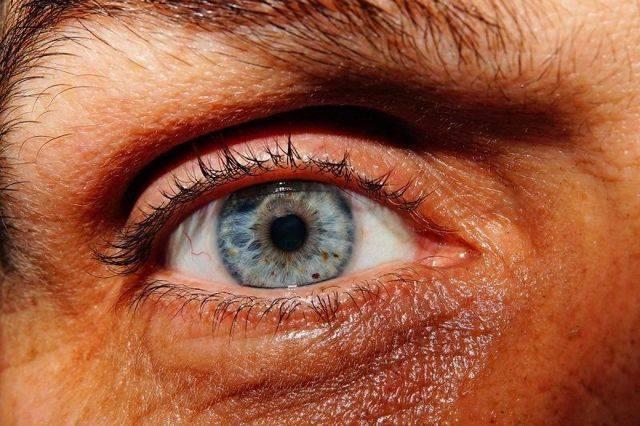 Хронический ирит. ирит - заболевание глаз (о лечении, симптомах, причинах). ирит у детей