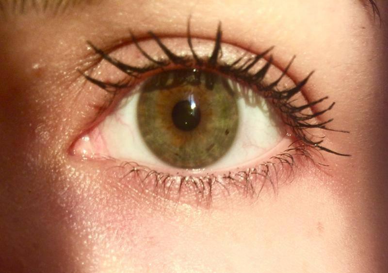 черные точки на глазах