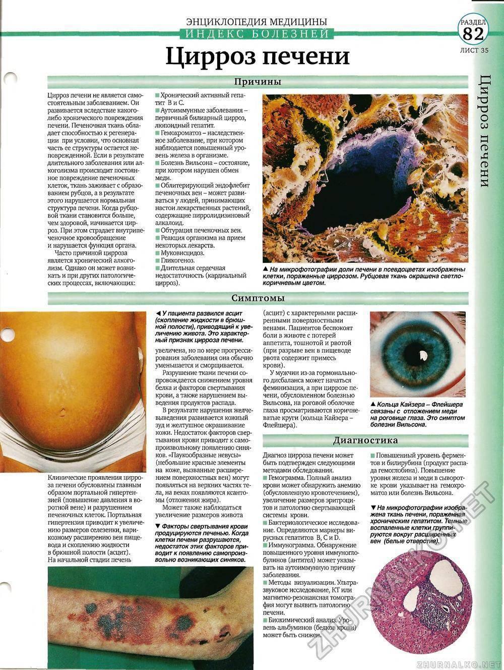 биохимия при циррозе печени