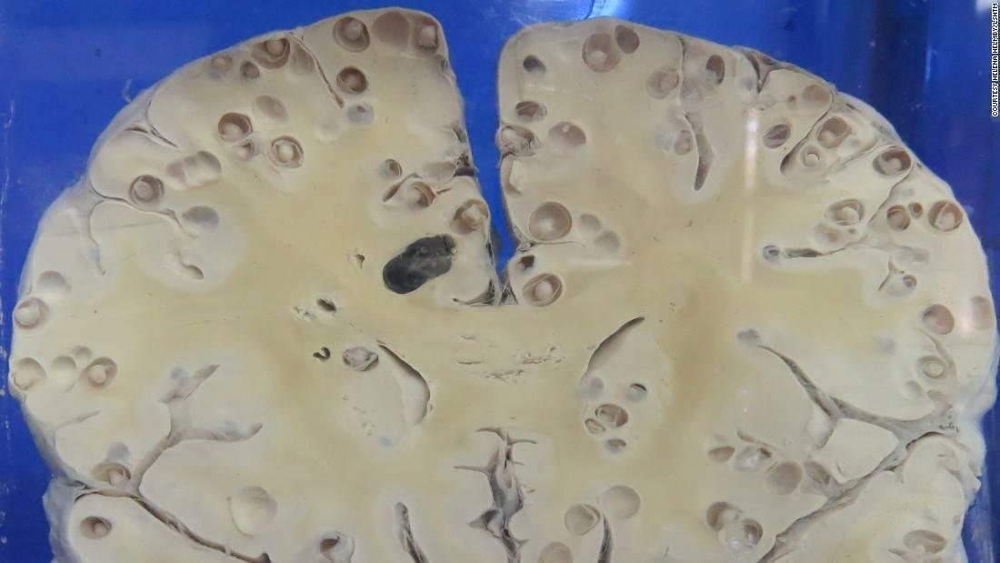 Глисты в головном мозге симптомы и лечение