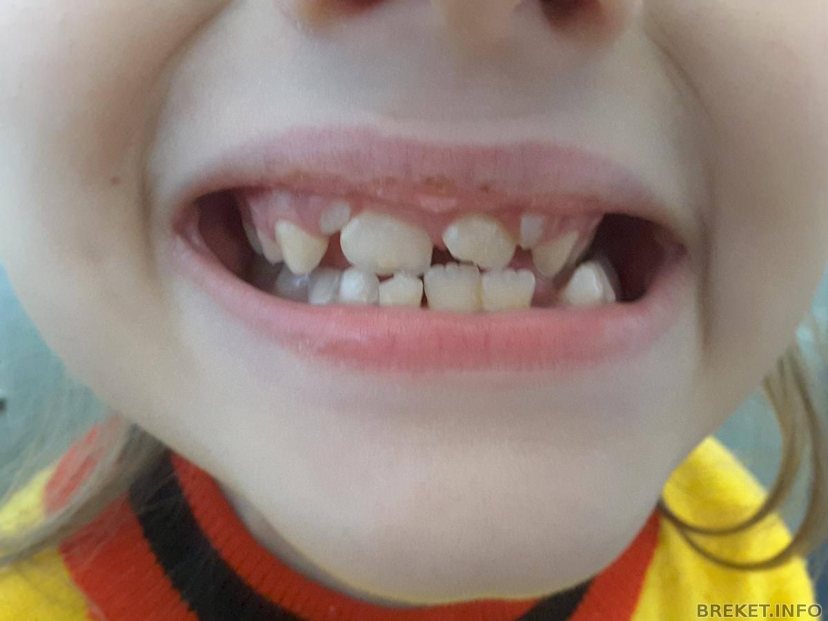 нижние молочные зубы растут криво