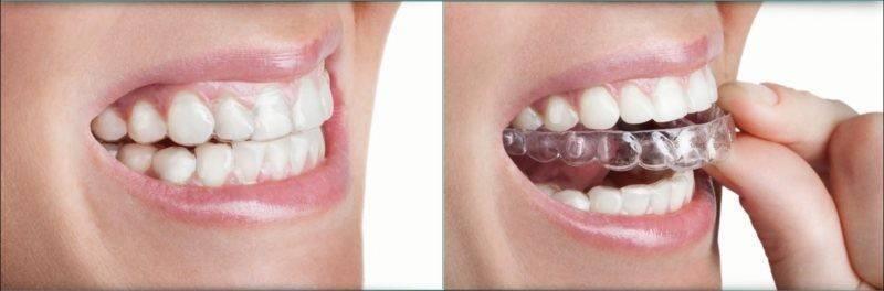 Как выровнять зубы без брекетов, возможно ли это?