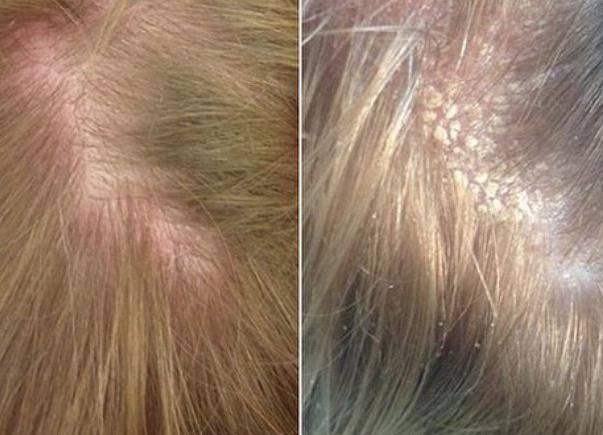 Себорейный дерматит – симптомы и лечение себореи на коже лица и волосистой части головы