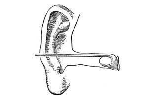 Как достать из уха инородный предмет?