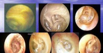 адгезивная болезнь среднего уха