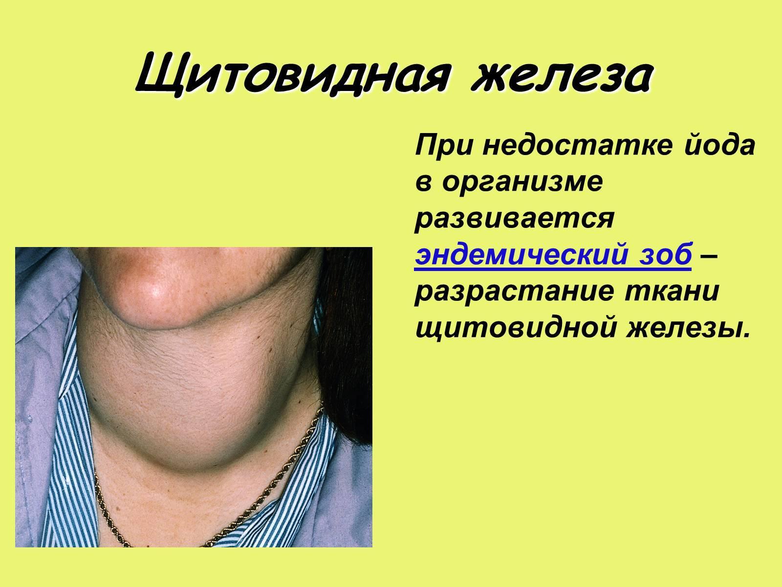 Тиреотропный гормон (ттг) понижен: что это значит, лечение у женщин