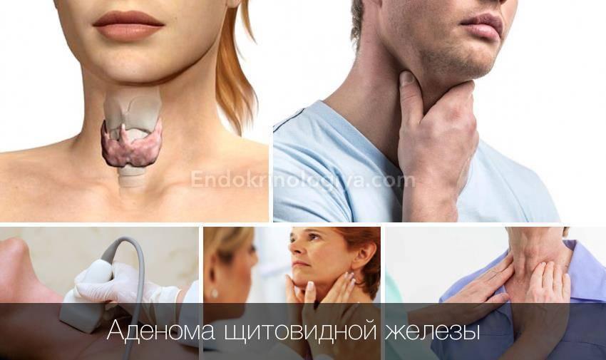 лечение аденомы щитовидной железы