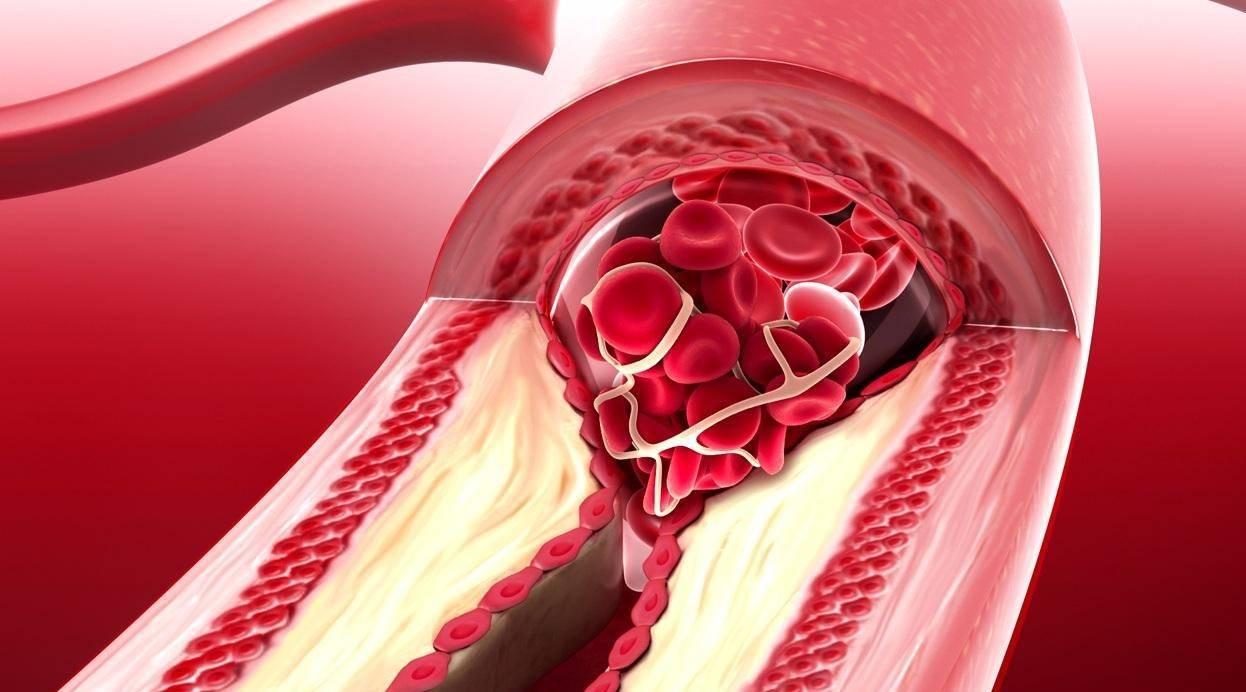 холестерин бляшки в сосудах
