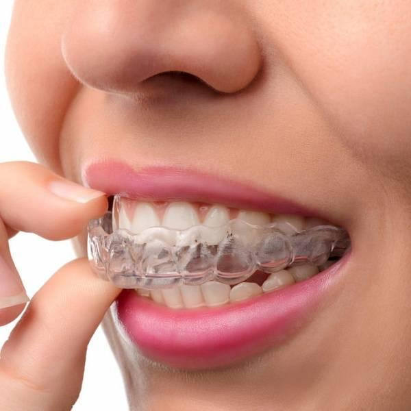 элайнеры каппа для зубов