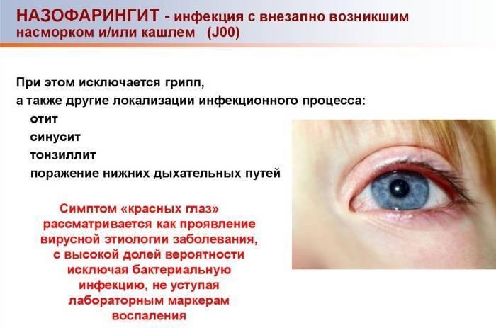 Назофарингит: симптомы, лечение, причины возникновения