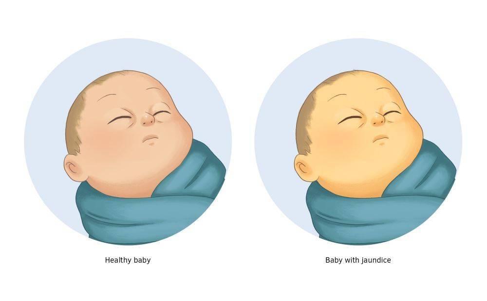 Ядерная желтуха новорожденных
