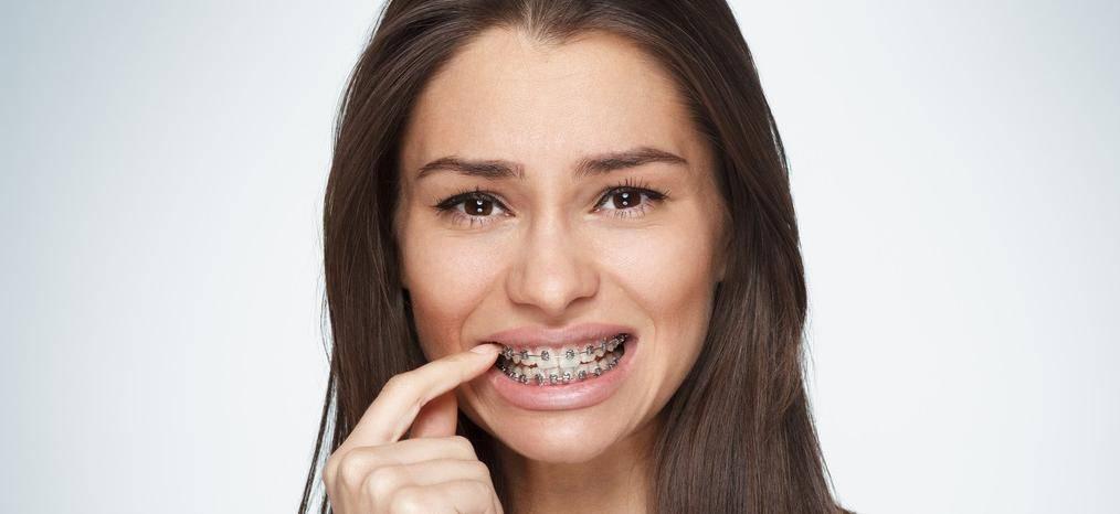 Почему болят зубы от брекетов