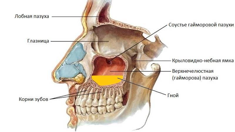 может ли при гайморите болеть зуб