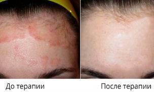 солярий при атопическом дерматите