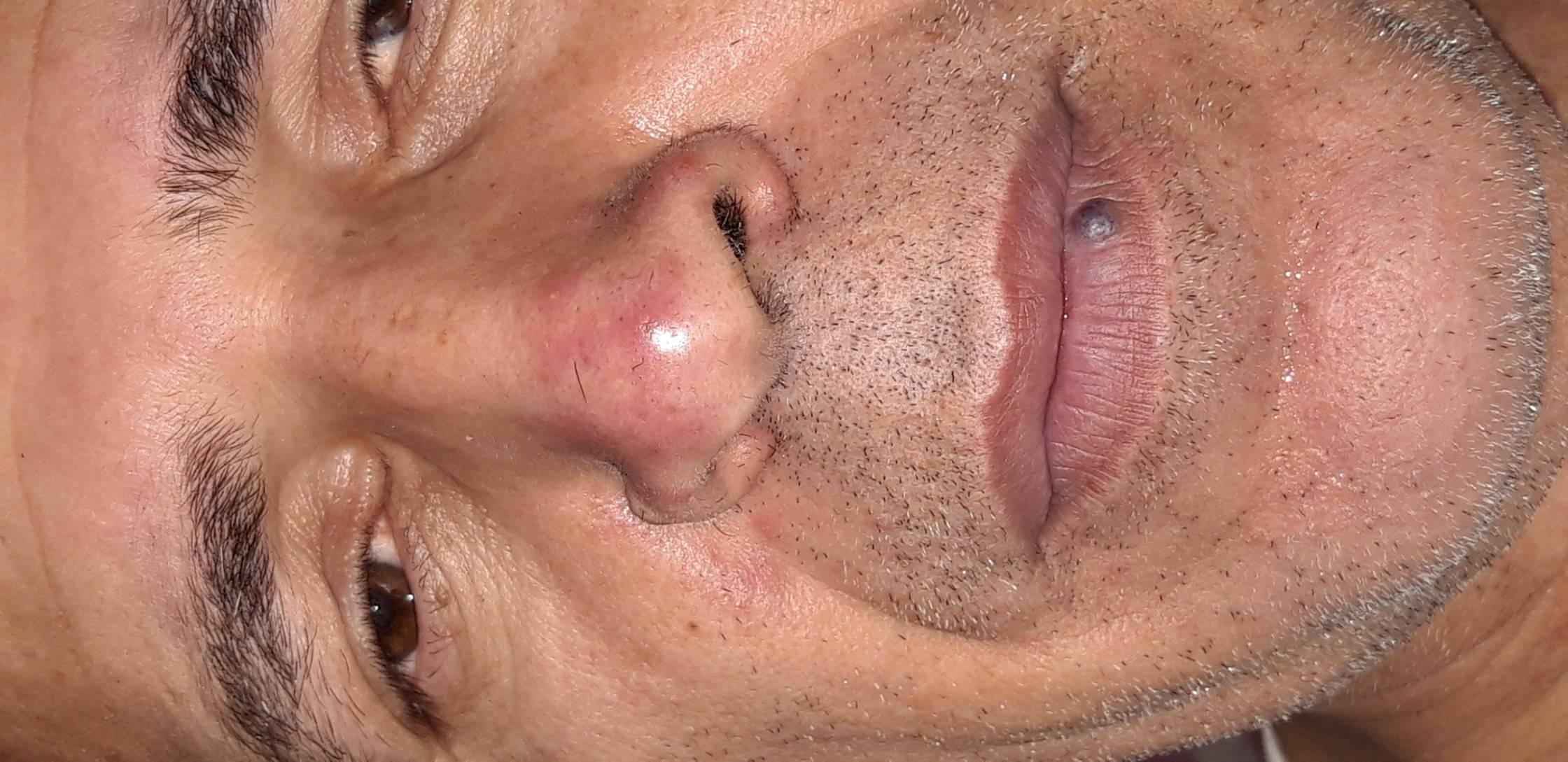 Прыщ на носу – примета древних времен