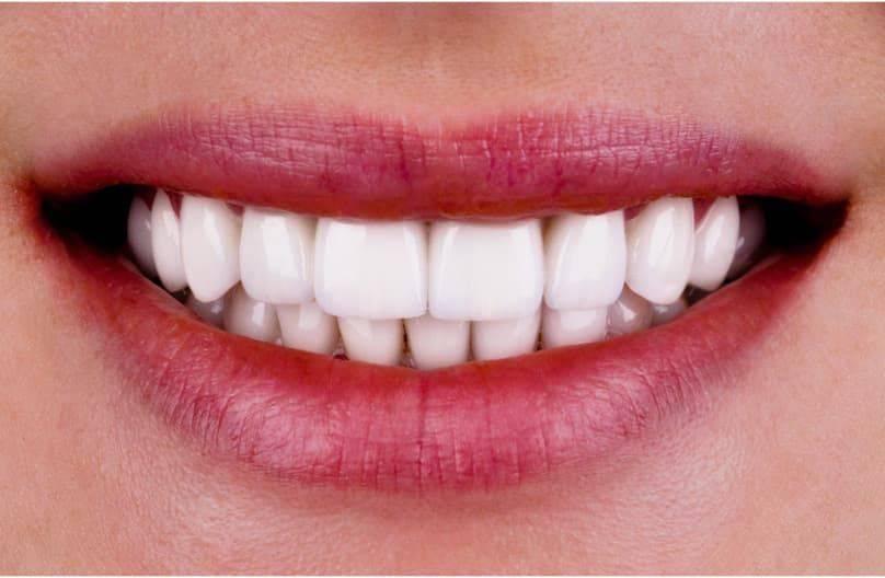Фотополимерная реставрация зубов