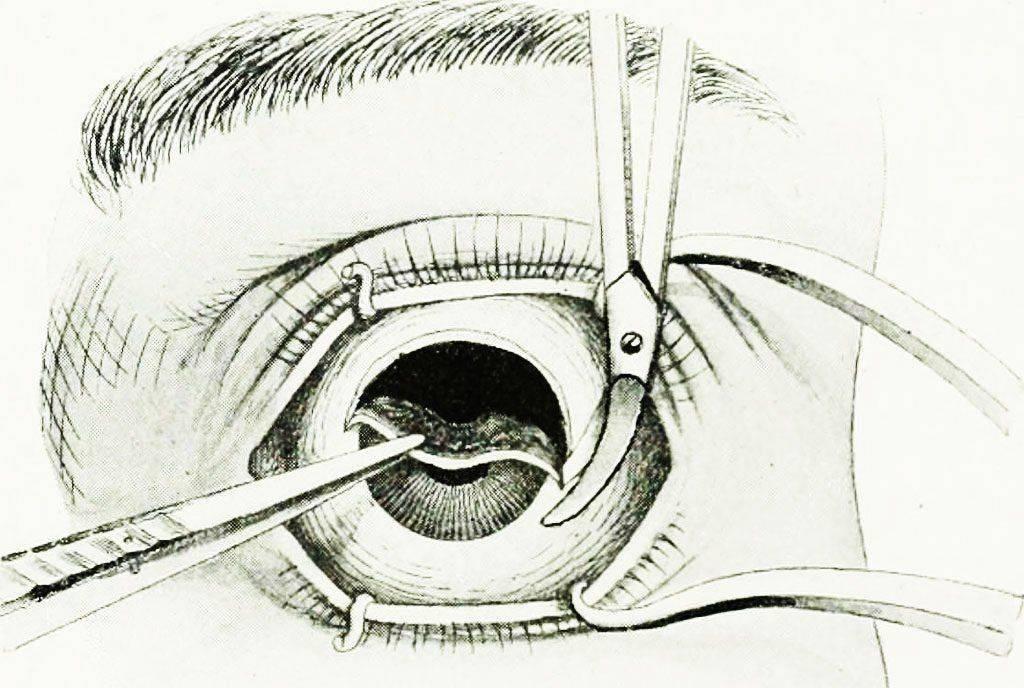 удаление глазного яблока у человека