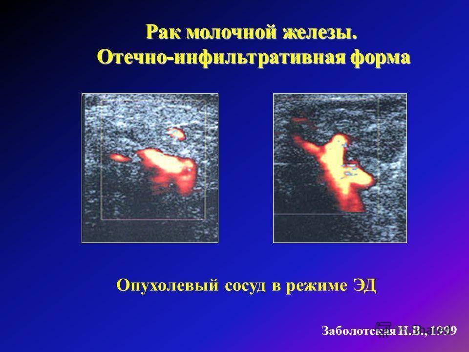 инфильтративный рак молочной железы 2 степени злокачественности