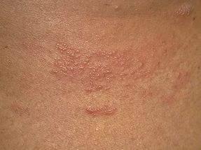 Нервный дерматит – неврогенная этиология, фото, лечение