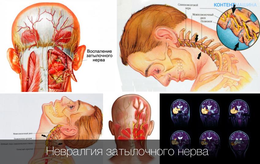 невралгия большого затылочного нерва симптомы
