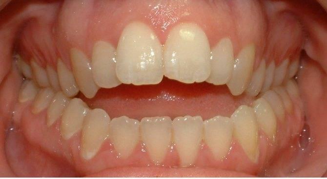 Формула молочных зубов: что это такое и как расшифровывается?