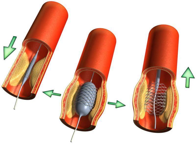 Качественная баллонная ангиопластика артерии – решение множества проблем! поведенная нами баллонная коронарная ангиопластика обязательно вам поможет!