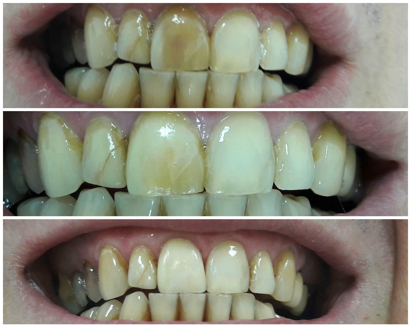 Что такое художественная реставрация зубов, или как вдохнуть новую жизнь в улыбку