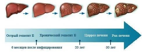 Передается ли гепатит с через слюну через поцелуй