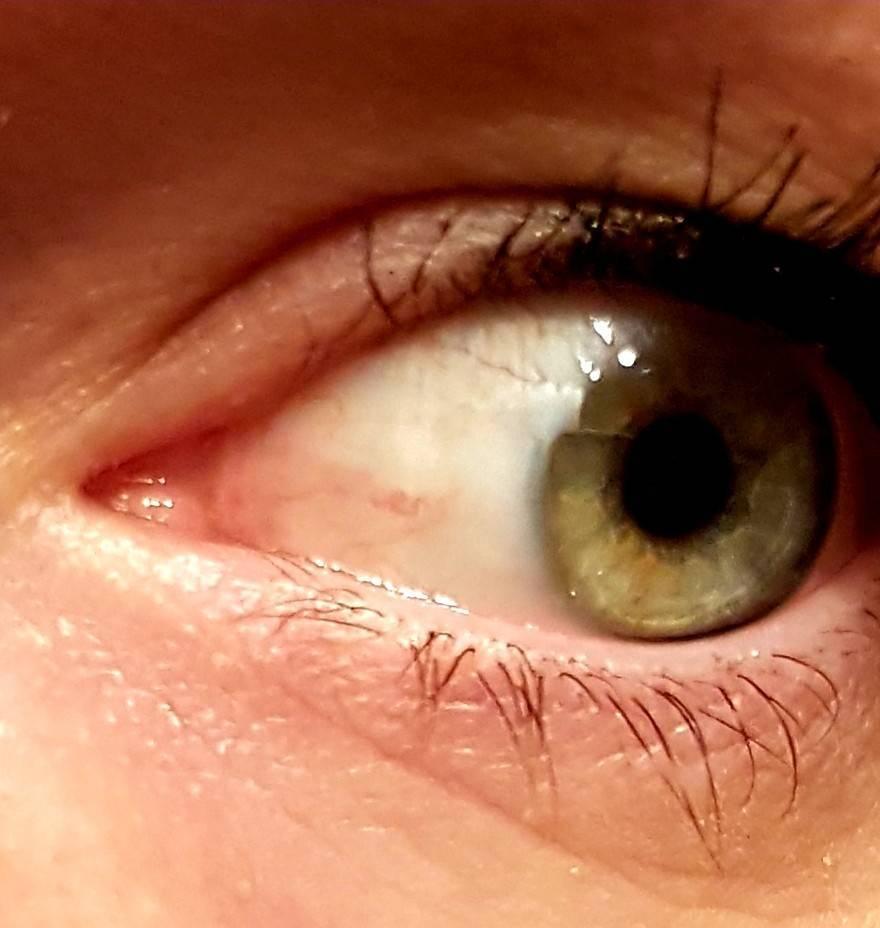пузырь на белке глаза