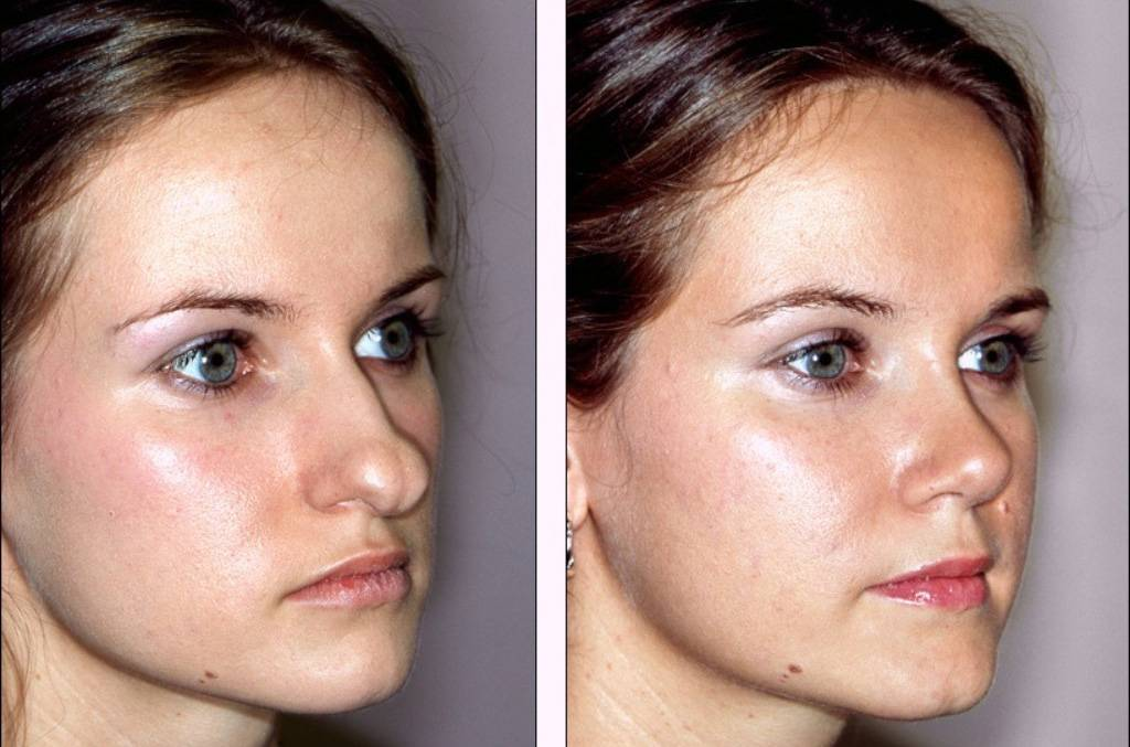 уменьшение кончика носа
