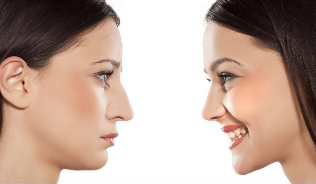 Как убрать синяк на носу от сливки. как быстро убрать синяк на лице в домашних условиях