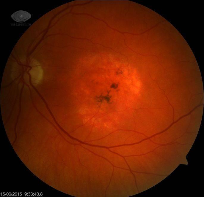 Симптоматика и лечение периферической дистрофии сетчатки глаза