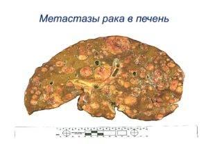 Множественные метастазы в печени прогноз срока жизни