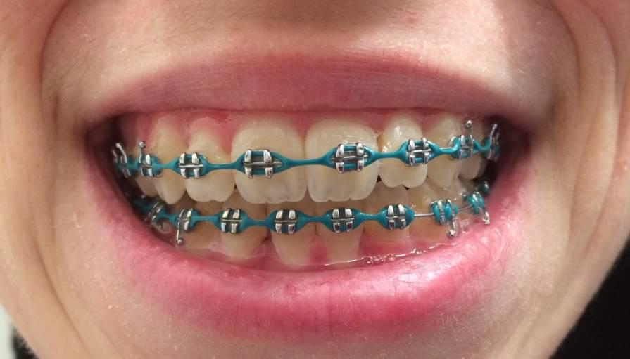 брекеты резинки на зубы
