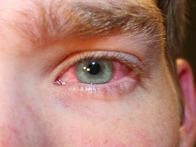 Глаза красные болят слезятся и гноятся