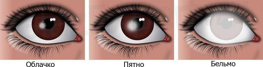 Бельмо на глазу - лечение, симптомы, виды