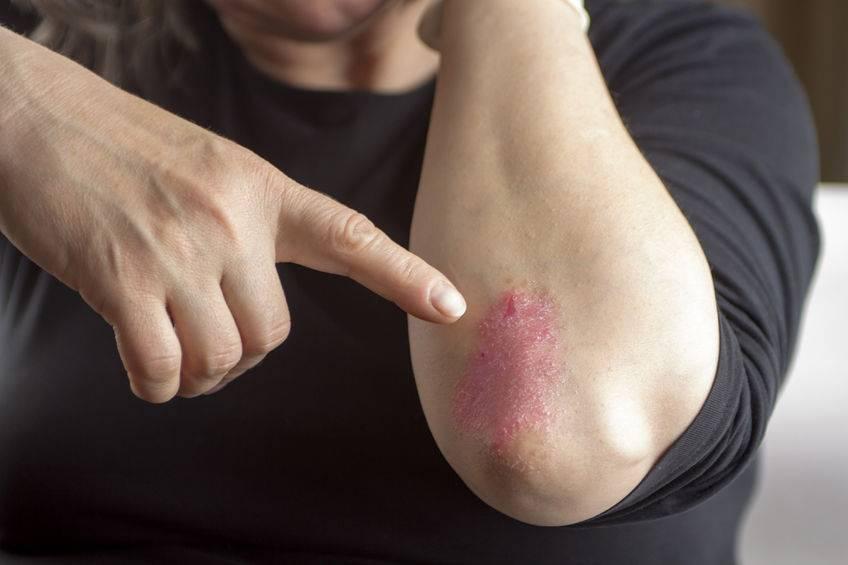 Псориаз на локтях: симптомы, лечение и фото