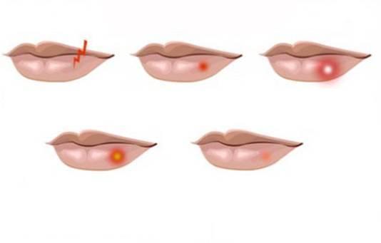 Малярия на губах: причины, лечение и профилактика