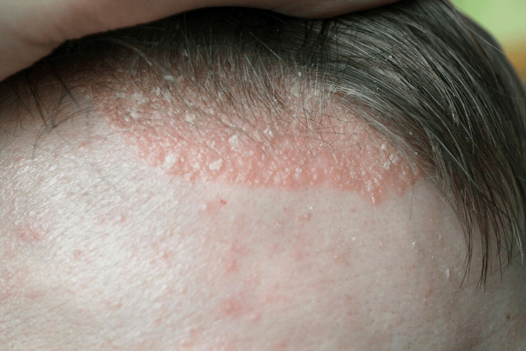 Лечение демодекоза на голове
