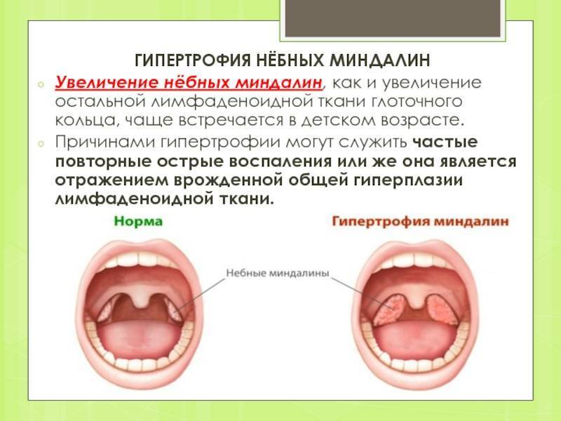 Гипертрофия небных миндалин у ребенка: вопросы по отоларингологии