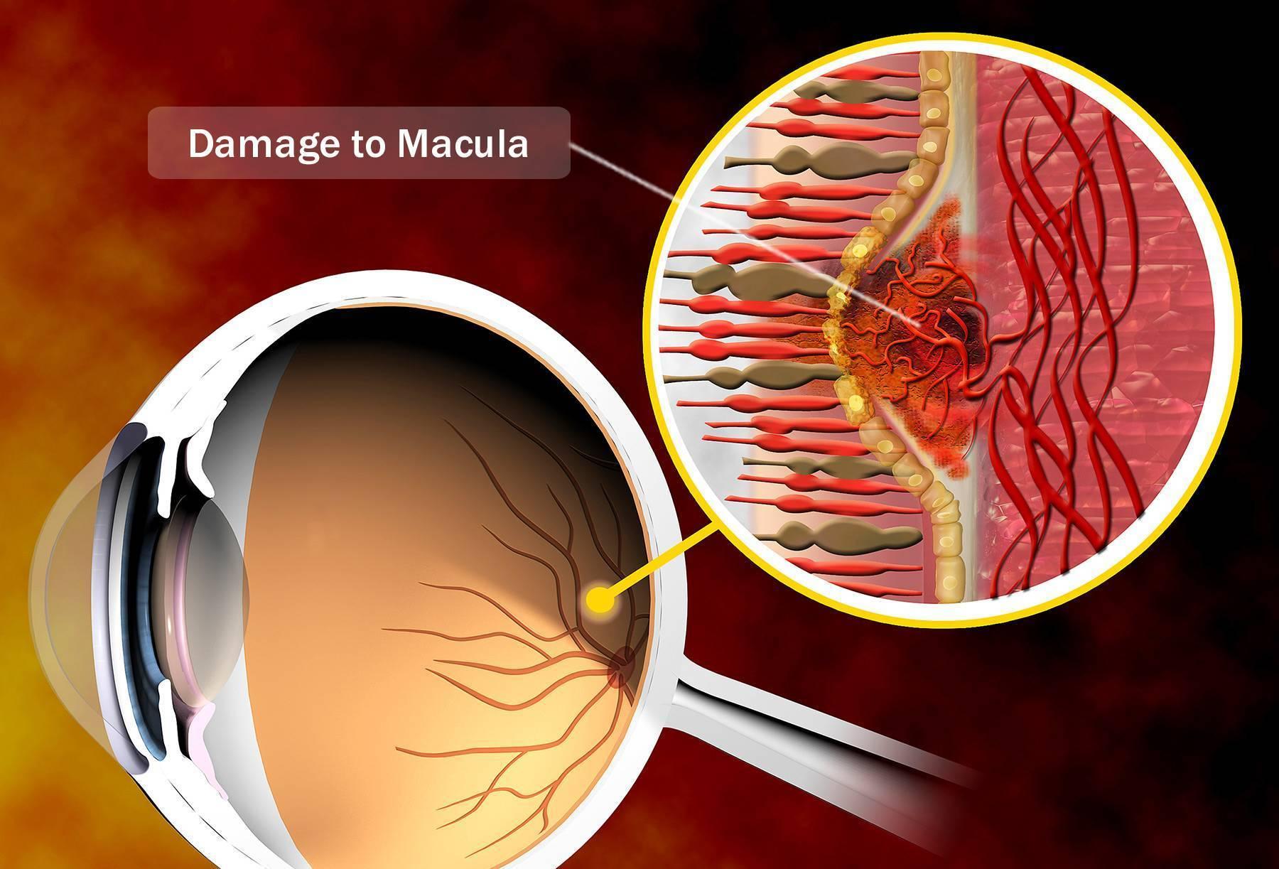 капли при макулодистрофии сетчатки глаза