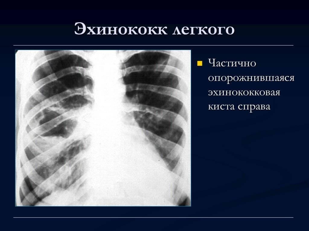 Полное описание эхинококкоза у человека