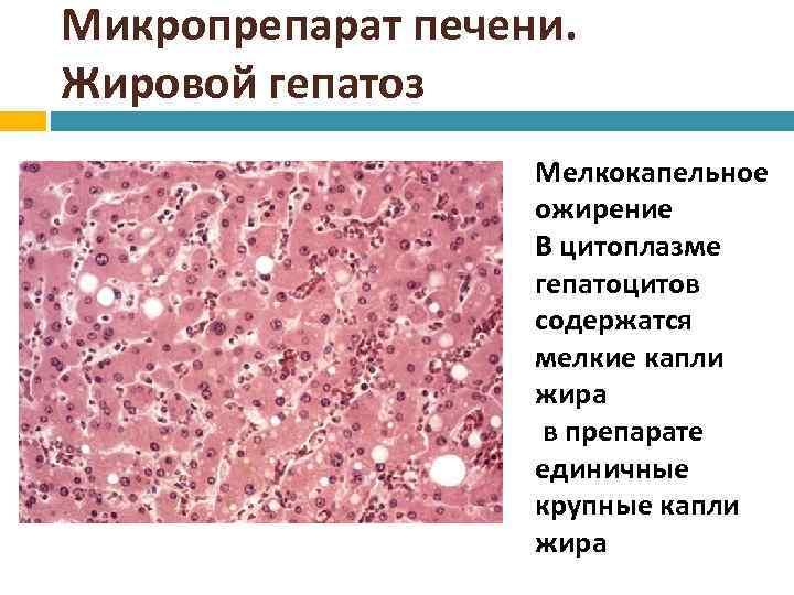 Дистрофия. виды дистрофии. жировая дистрофия печени, дистрофия дюшенна, дистрофия миокарда, дистрофии глаза