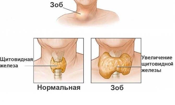 Препараты для лечения гиперплазии щитовидной железы