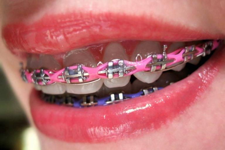 Резинки для брекетов — виды, цены и фото цветных тяг на зубы