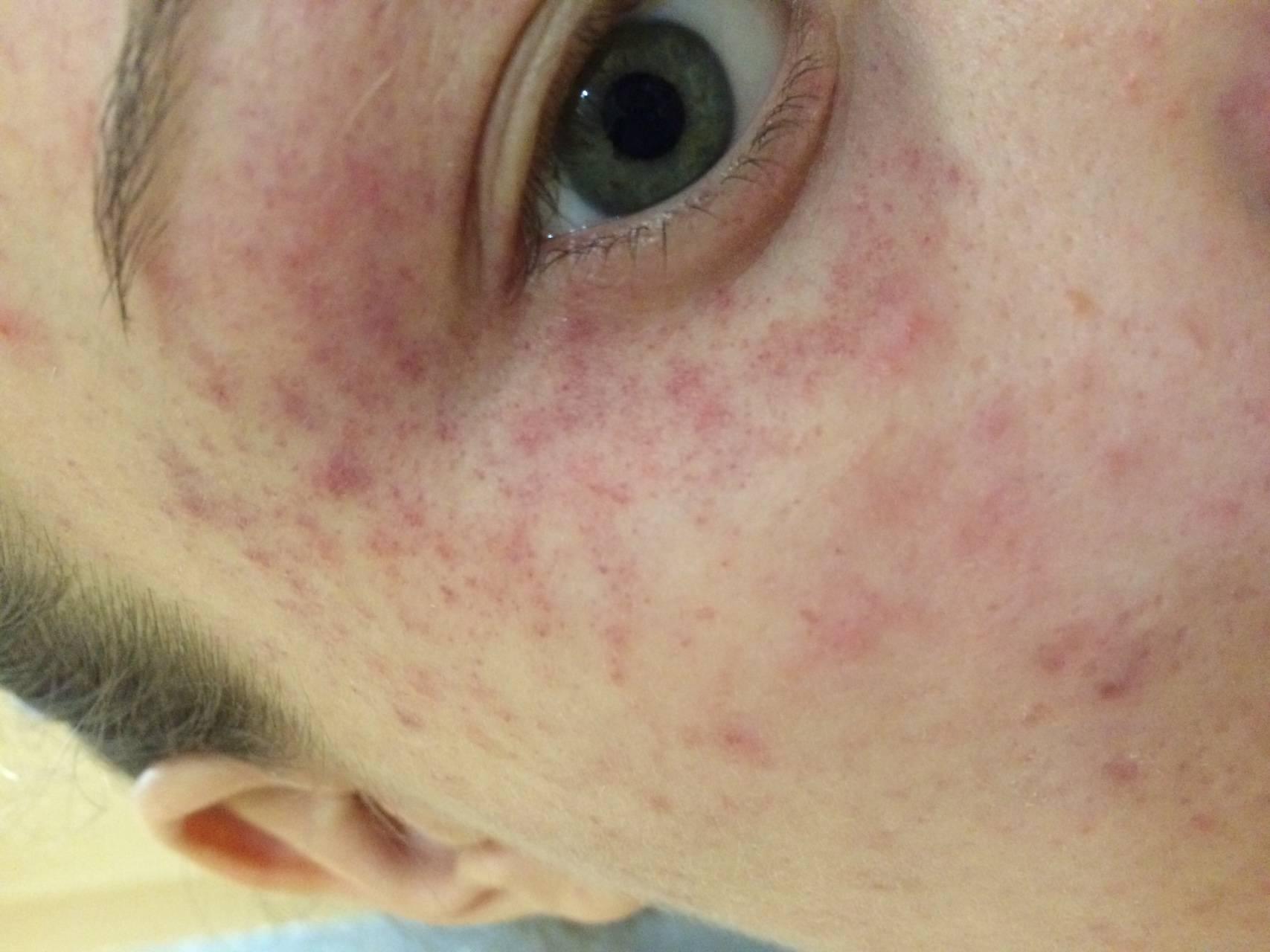 как можно заразиться демодексом глаз